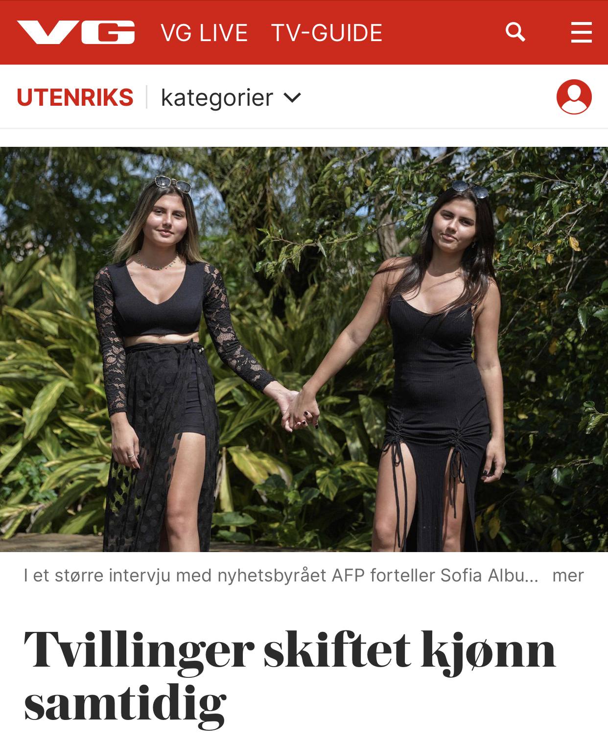 Tvillinger skifter kjønn
